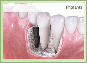implant_en